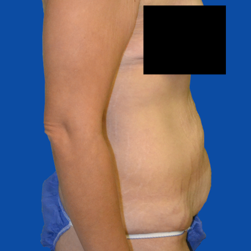 right side before tummy tuck case 1493