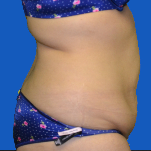 right side view before tummy tuck