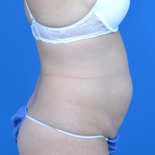 patient before tummy tuck, right side view, case 1580