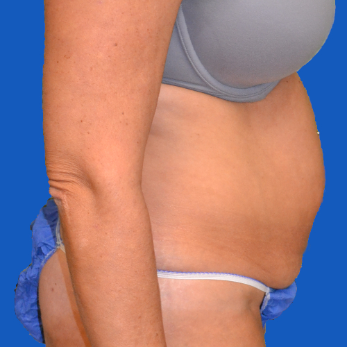 right side view of patient before tummy tuck case 1600