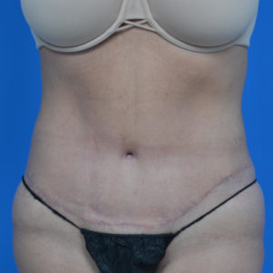 after tummy tuck front view case 1445