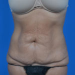 before tummy tuck front view case 1445