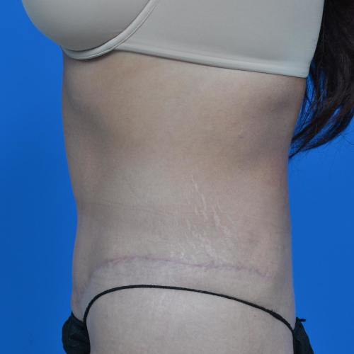after tummy tuck left side view case 1445