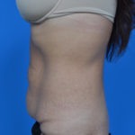 before tummy tuck left side view case 1445
