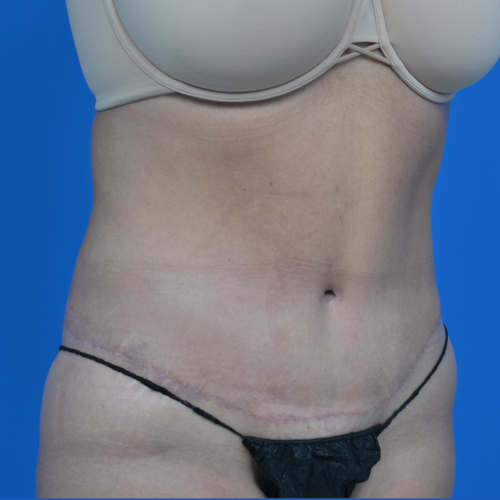 after tummy tuck oblique view case 1445