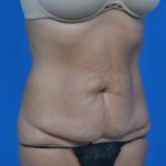 before tummy tuck oblique view case 1445