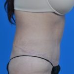 after tummy tuck right side view case 1445