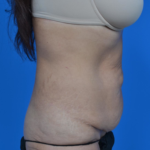 before tummy tuck right side view case 1445
