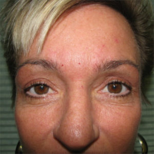 after upper eyelid surgery case 932