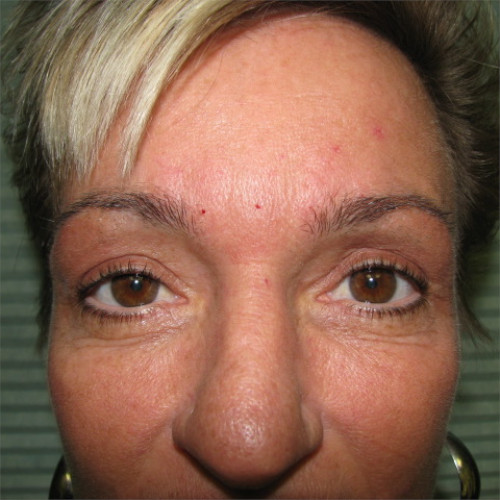 after upper eyelid surgery case 932