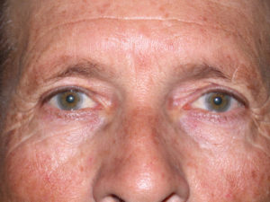 upper eyelid surgery on middle aged male case 935