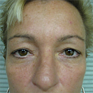 before upper eyelid surgery case 932