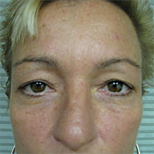 before upper eyelid surgery case 932