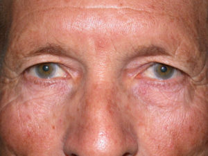 before upper eyelid surgery on male patient case 935