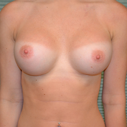 after breast augmentation front view case 2318