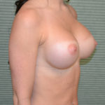 breast augmentation after photo oblique view case 2318