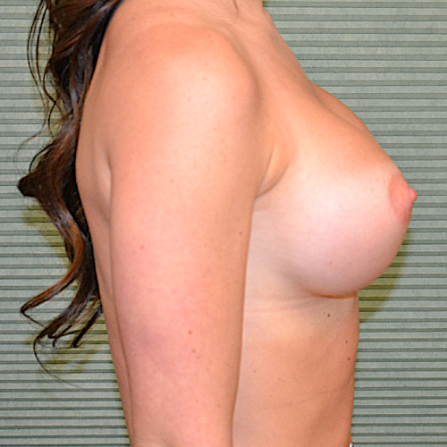 breast augmentation results right side view case 2318