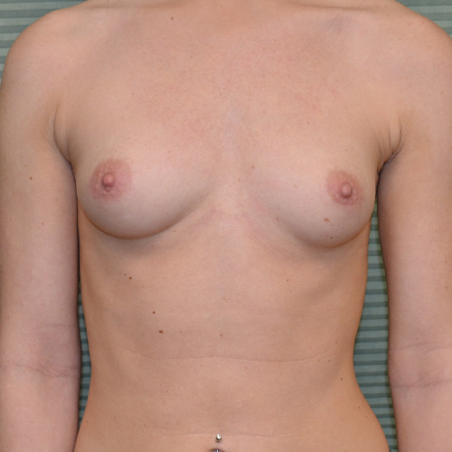 breast augmentation before image front view case 2318