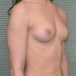 breast augmentation before photo oblique view case 2318