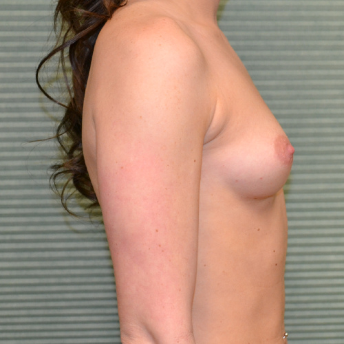 breast augmentation before photo side view case 2318