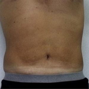 male patient's abdomen front view after liposuction case 2242