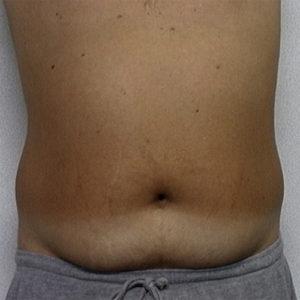 male patient's abdomen before liposuction case 2242