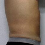 abdomen of male patient after liposuction case 2242