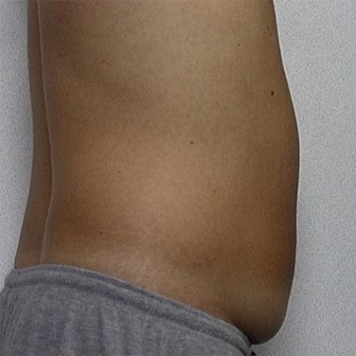 side view of patient's abdomen before liposuction case 2242