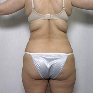 back view of female patient's flanks before liposuction, case 2232