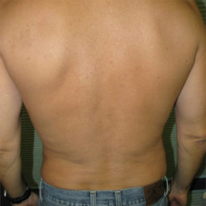 male patient's flanks after liposuction