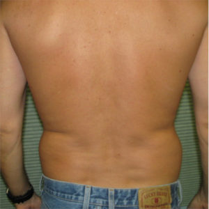 male patient's flanks before liposuction