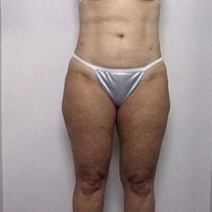 female patient's thighs after liposuction, front view case 2238