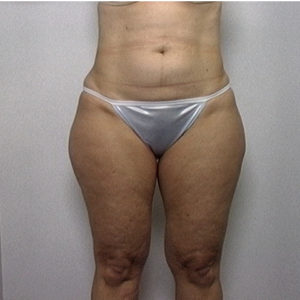 female patient's thighs before liposuction, front view case 2238