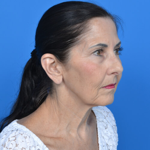 facelift before right oblique view