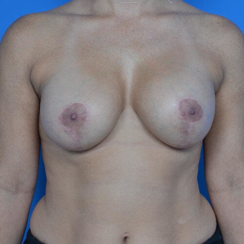 breast lift with galaform 3D front after