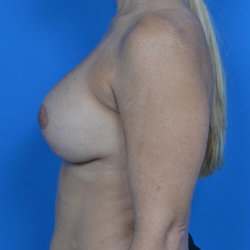 breast lift with galaform 3D side after