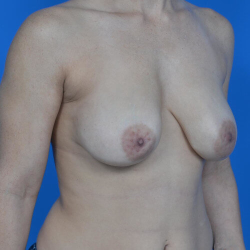 breast lift with galaform 3D oblique before