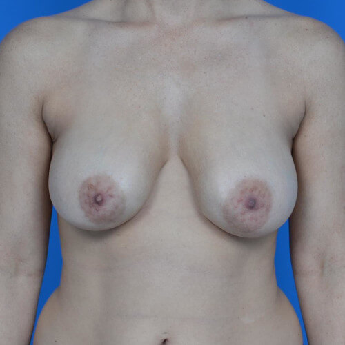 breast lift with galaform 3D front before