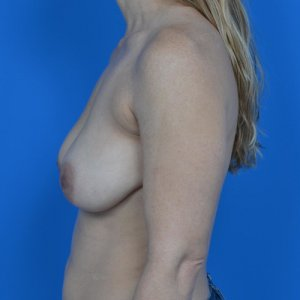 breast lift with galaform 3D side before