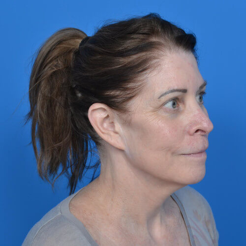 facelift before right oblique
