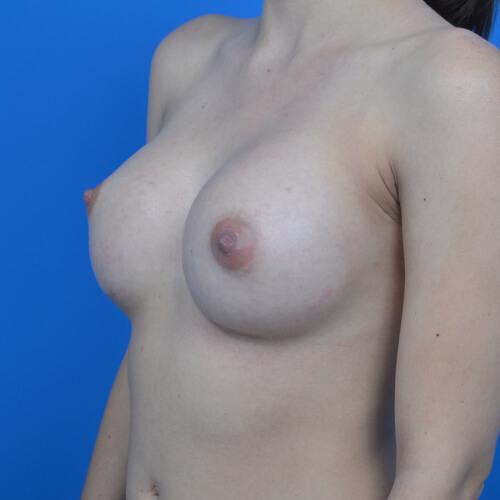 breast augmentation after L oblique 300cc