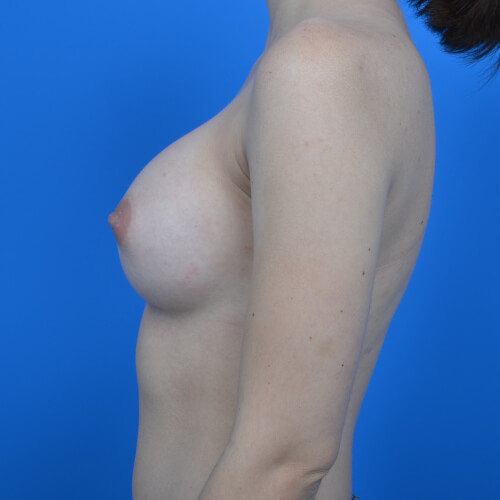 breast augmentation after L side 300cc