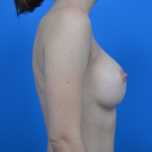 breast augmentation after R side 300cc