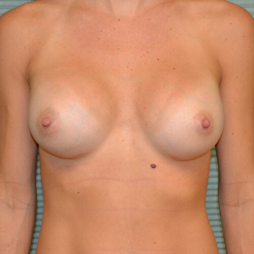 breast-augmentation-after-front-405cc