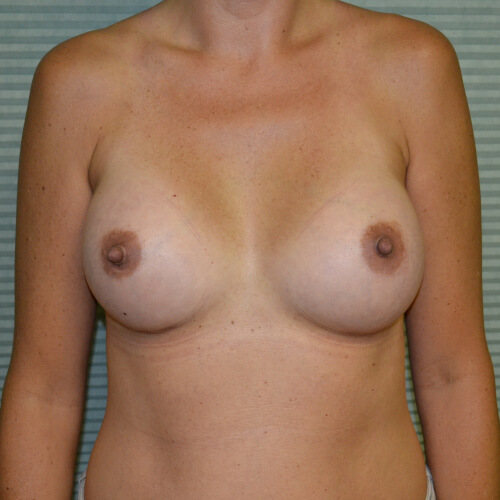 breast augmentation after front 325cc