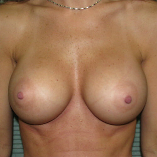 breast-augmentation-after-front-saline-475cc