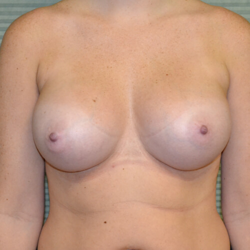 breast augmentation after front 375cc