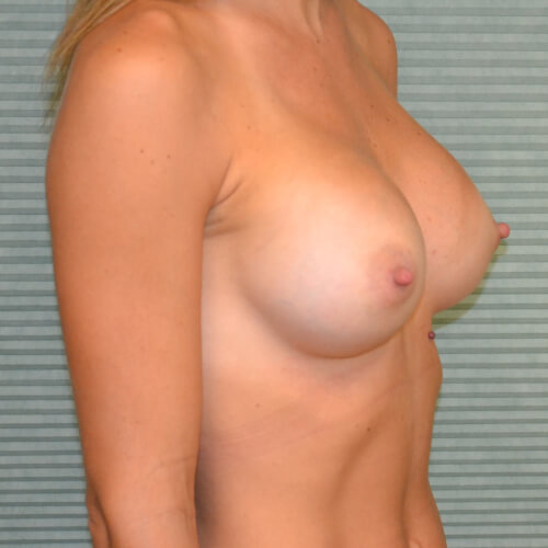breast-augmentation-after-oblique-405cc