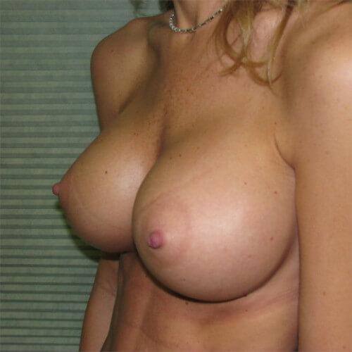 breast-augmentation-after-oblique-saline-475cc