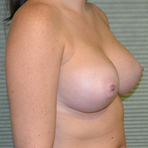 breast augmentation after oblique 375cc